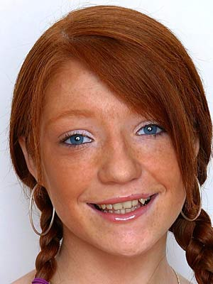 Nicola Roberts gets new teeth in £100,000 makeover - Now ...